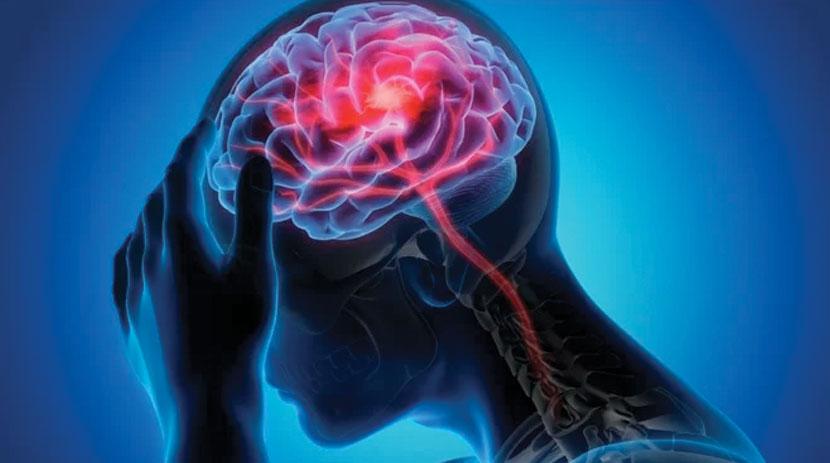 brain injury - valdivia law